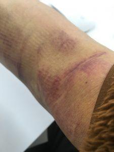 血管腫の経過20190323右肘裏